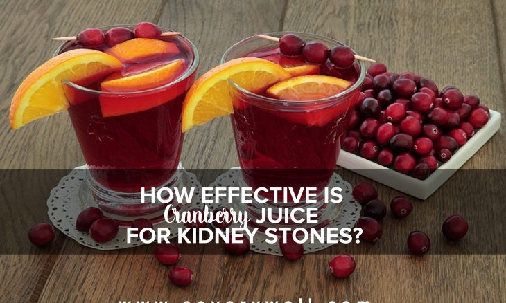 cranberry juice for kidney stones