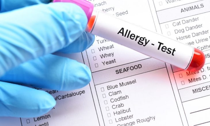 The Different Types Of Gluten Allergy Blood Test And Exam